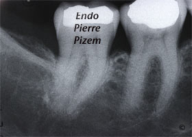 Atypical canal configurations, Radix Entomolaris, Root Canal Treatment Pre-Therapy 500446-1