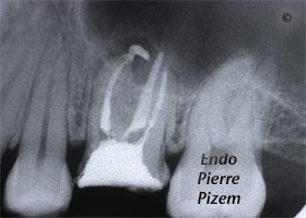 Dental operating microscope (D.O.M.), Striving for Second Mesio Vestibular (MB2), Root Canal Treatment Per-Therapy 505026-2