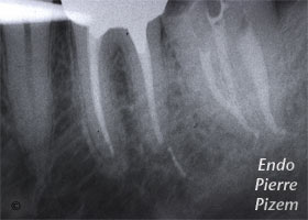 Curved Canals, Dilaceration, Root Canal Treatment Per-Therapy 29537-2