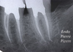 Curved Canals, Dilaceration, Root Canal Treatment Post-Therapy 29537-1