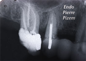 Dental operating microscope (D.O.M.), D.O.M. versus partially calcified systems, Root Canal Treatment Per-Therapy 357016-1