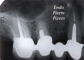 Dental operating microscope (D.O.M.), D.O.M. versus partially calcified systems, Root Canal Treatment Post-Therapy 357016-1
