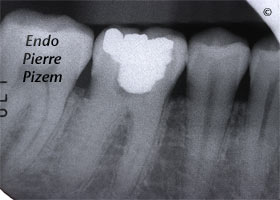 Dental operating microscope (D.O.M.), D.O.M. versus completely calcified systems, Root Canal Treatment Per-Therapy 506846-1