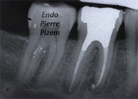 Dental operating microscope (D.O.M.), D.O.M. versus completely calcified systems, Root Canal Treatment Post-Therapy 506846-1