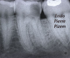 Root Canal with S Curvature Pre-Therapy 513236-1