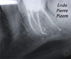 Root Canal with S Curvature Post-Therapy 513236-1