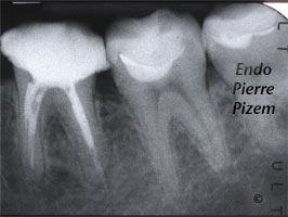Dental Operative Microscope and Retreatment, Dealing with Ledges and Apical Zip, Root Canal Treatment Pre-Therapy 502636-1