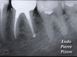 Dental Operative Microscope and Retreatment, Dealing with Ledges and Apical Zip, Root Canal Treatment Post-Therapy 502636-1