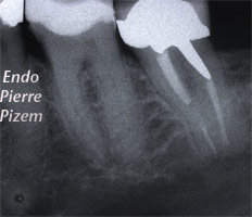 Dental operating microscope (D.O.M.), D.O.M. versus partially calcified systems, Root Canal Treatment Pre-Therapy 433336-1