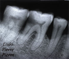 Post and core build ups, Root Canal Treatment Pre-Therapy 497146-1