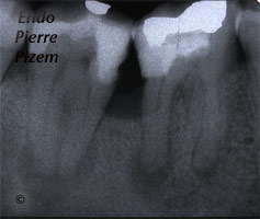 Post and core build ups, Root Canal Treatment Pre-Therapy 504046-1
