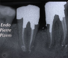 Post and core build ups, Root Canal Treatment Per-Therapy 504046-2