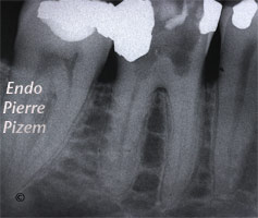 Dental operating microscope (D.O.M.), D.O.M. versus partially calcified systems, Root Canal Treatment Pre-Therapy 513546-1