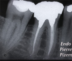 Dental operating microscope (D.O.M.), D.O.M. versus partially calcified systems, Root Canal Treatment Post-Therapy 513546-1