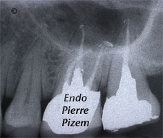 Dental operating microscope (D.O.M.), Pulp Stones (Denticles), Root Canal Treatment Post-Therapy 479527-3