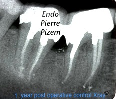 Post and core build ups, Root Canal Treatment Post-Therapy 504046-1