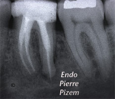 Atypical Canal Configurations, Type V, Root Canal Treatment Pre-Therapy 524236-1