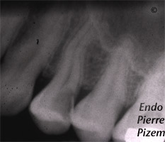 Curved Canals, Canal Curvature with an 'S' form, Root Canal Treatment Pre-Therapy 528224-1