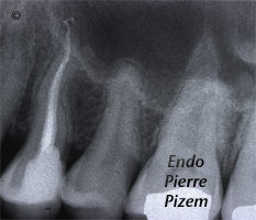 Curved Canals, Canal Curvature with an 'S' form, Root Canal Treatment Post-Therapy 528224-1