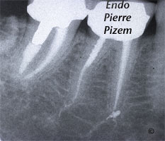 Dental operating microscope (D.O.M.), D.O.M. versus partially calcified systems, Root Canal Treatment Post-Therapy 49747-1