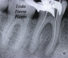 Atypical Canal Configurations, Very Long Teeth, Root Canal Treatment Per-Therapy 528746-1