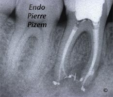 Atypical Canal Configurations, Very Long Teeth, Root Canal Treatment Post-Therapy 528746-1