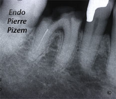 Dental operating microscope (D.O.M.), D.O.M. versus partially calcified systems, Root Canal Treatment Pre-Therapy 530346-1