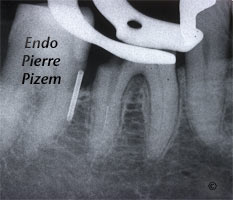 Dental operating microscope (D.O.M.), D.O.M. versus partially calcified systems, Root Canal Treatment Per-Therapy 530346-1
