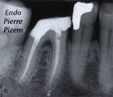 Dental operating microscope (D.O.M.), D.O.M. versus partially calcified systems, Root Canal Treatment Post-Therapy 530346-1