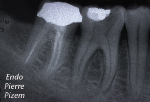 Atypical canal configurations, Type V, Root Canal Treatment Pre-Therapy 5037-1