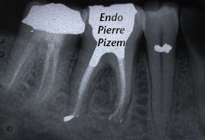 Atypical canal configurations, Type V, Root Canal Treatment Per-Therapy 5037-1