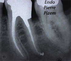 Atypical Canal Configurations, Very Long Teeth, Root Canal Treatment Post-Therapy 532636-1