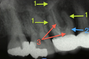Dental Operative Microscope and Retreatment, Finding Previously Underseen MB2, Root Canal Treatment Pre-Therapy