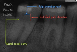 Dental operating microscope (D.O.M.), Pulp Stones (Denticles), Root Canal Treatment, Calcified Second Molar