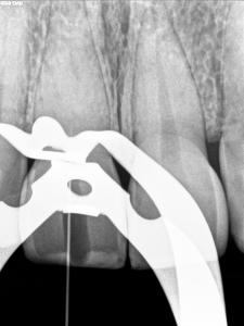Dental operating microscope (D.O.M.), D.O.M. versus completely calcified systems, Root Canal Treatment Per-Therapy
