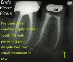 Performing root canal revision procedure 392346A