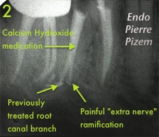 Root canal revision procedure 392346B