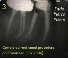 Eliminating pain with a Root canal revision procedure 392346C