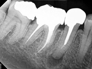 Dental operating microscope (D.O.M.), D.O.M. versus partially calcified systems, Root Canal Treatment, Endodontic Revision Procedure Tooth #45 Pre Op.