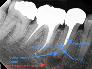 Dental operating microscope (D.O.M.), D.O.M. versus partially calcified systems, Root Canal Treatment, Post removal and endodontic revision
