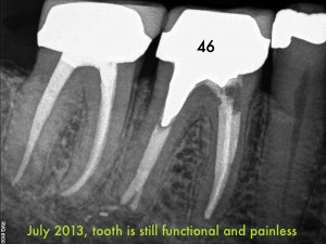Root Canal rRevision, a 7 years Post Operative Successful Outcome