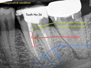 Dental Operative Microscope and Retreatment, Dealing with Broken Instruments Removal, Root Canal Treatment Pre-Therapy (2)