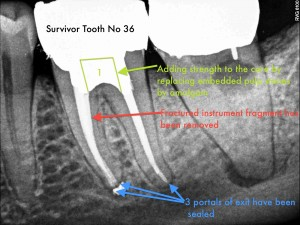 Dental Operative Microscope and Retreatment, Dealing with Broken Instruments Removal, Root Canal Treatment Per-Therapy