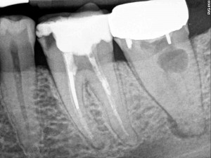 Dental Operative Microscope and Retreatment, Dealing with Broken Instruments Removal, Root Canal Treatment Pre-Therapy